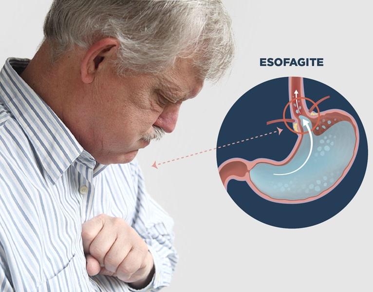 Inflamação do Esôfago a Esofagite - Tipos, Causas e Sintomas