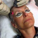Fotona Peeling a Laser – Benefícios