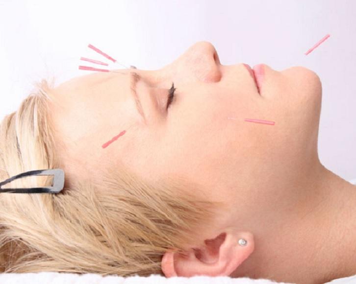 Acupuntura Facial – Benefícios