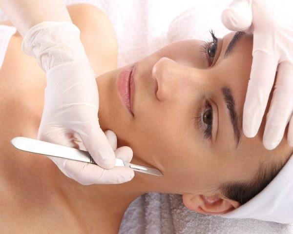 Depilação Facial Dermaplaning – Como Funciona, Vantagens e Desvantagens