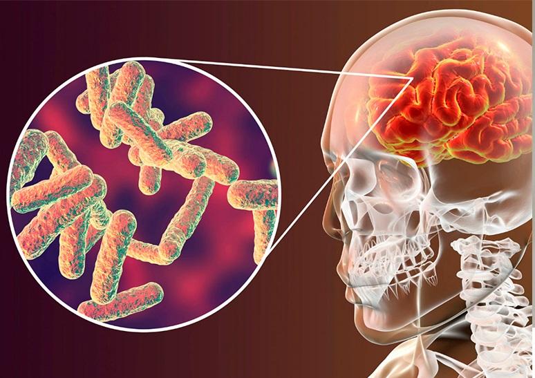 Meningite Meningocócica – Causas, Sintomas e Vacinas