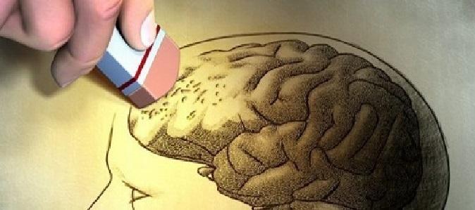 Demência – Causas e Sintomas