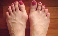 Halux Valgo a Joanete – Causas e Sintomas