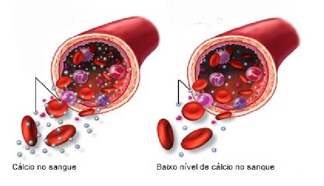 Hipocalcemia – Causas e Sintomas