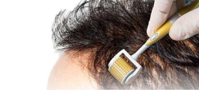 Microagulhamento Para Queda de Cabelo – Nova Técnica e Como Age