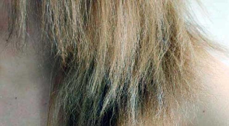 Cabelos Porosos – Sinas e Causas