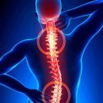 Espondilite Anquilosante – Causas e Sintomas