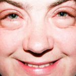 Sinais no Rosto – Revelam Sobre a Saúde