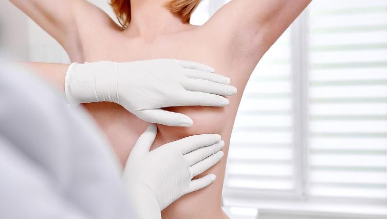 Tratamento Para Câncer de Mama – Imunoterapia