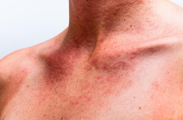 Alergia na Pele – Remédios Naturais