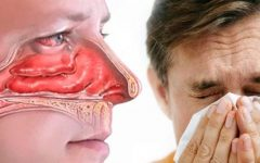 Chás Para Tratar Rinite – Dicas