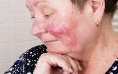 Alergia ao Frio – Causas e Sintomas