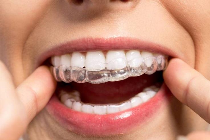 Aparelho Invisível Nos Dentes - Tratamento