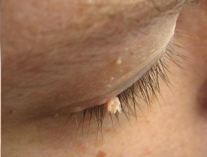 Verruga na Pálpebra – Cuidados