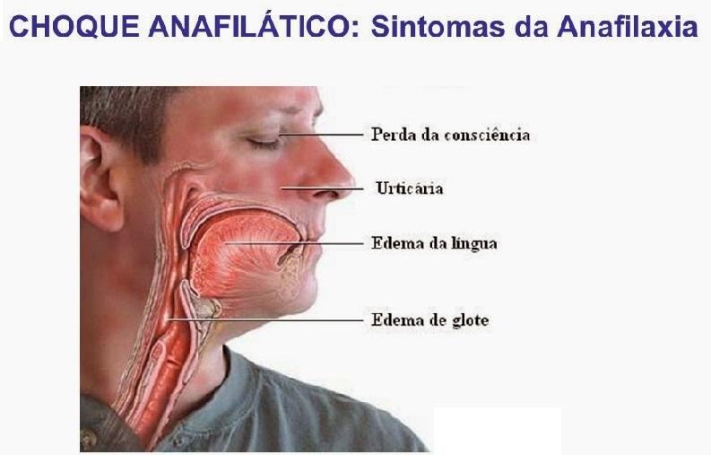 Choque Anafilático – Causas e Sintomas