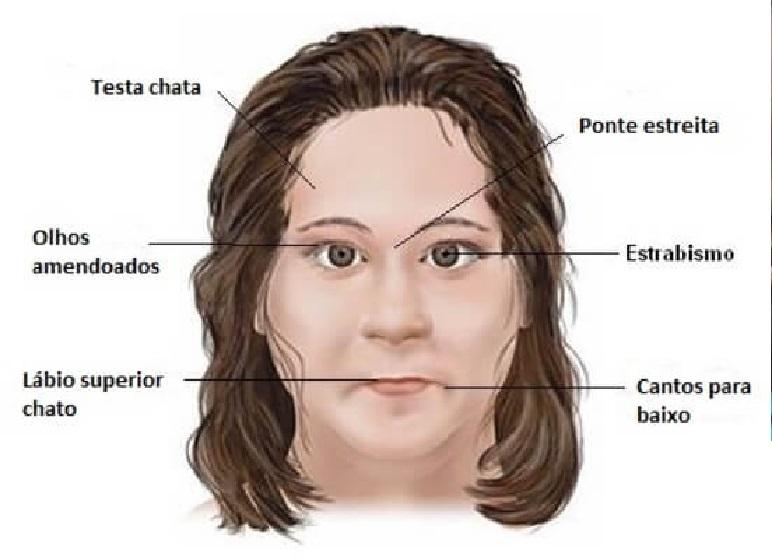 Síndrome de Prader-Willi– Sintomas e Tratamento