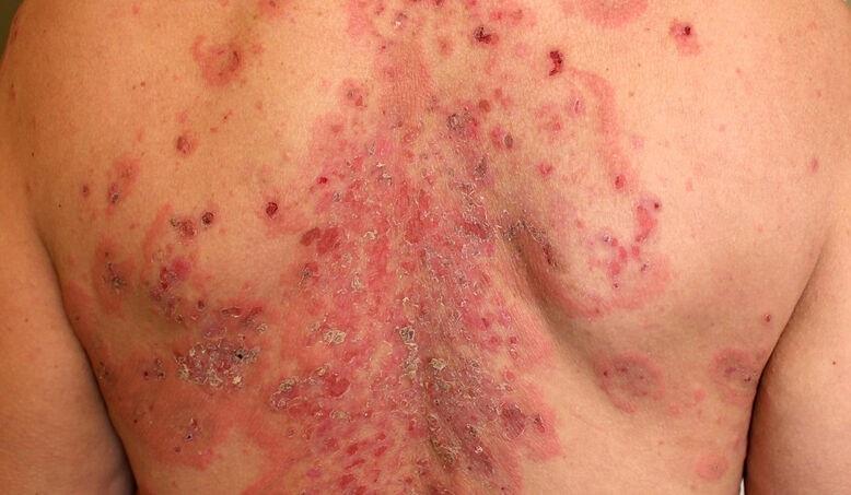 Doença Pênfigo – Tipos e Tratamento