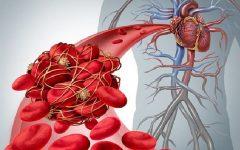 Embolia Arterial – Causas e Sintomas