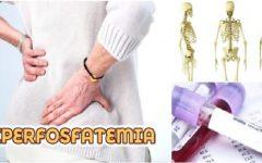 Hiperfosfatemia – Causas e Sintomas